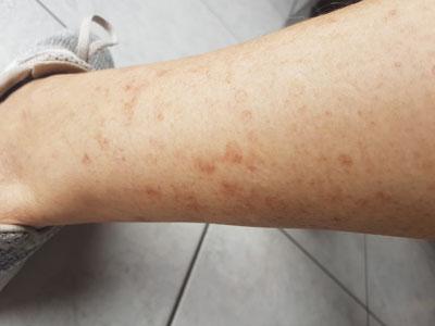 kératose actinique sur les jambes